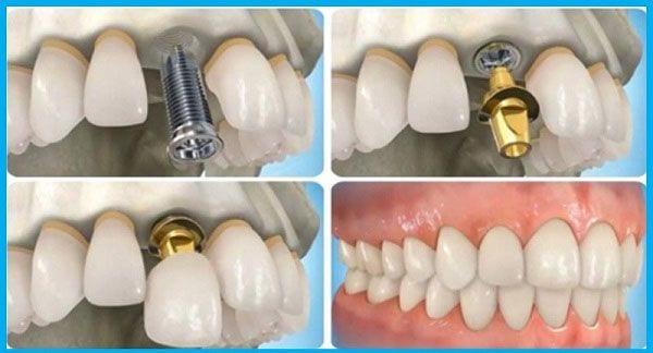 Cấy Ghép Implant Có Đau Không? Nha Khoa Quốc Tế Á Châu - ảnh 3