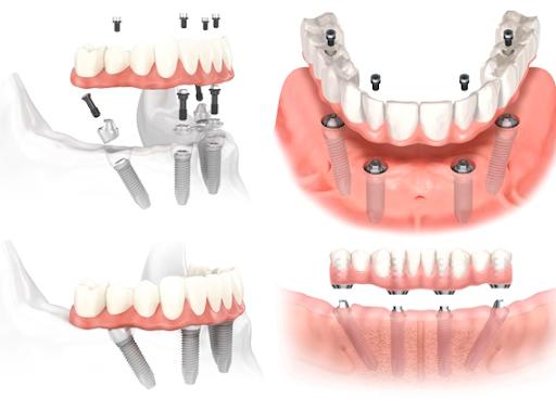 Trồng Răng Giả Implant Loại Nào Tốt Nhất Hiện Nay? Nha Khoa Quốc Tế Á Châu - ảnh 2
