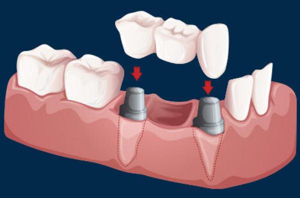 Làm Cầu Răng Sứ Có Gây Hôi Miệng Không? – Nha Khoa Quốc Tế Á Châu - ảnh 3