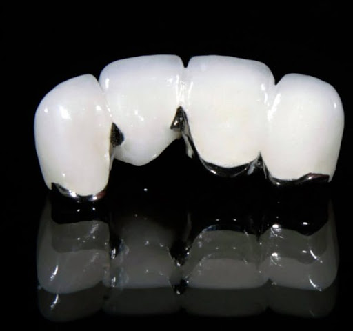 Làm Cầu Răng Sứ Có Gây Hôi Miệng Không? – Nha Khoa Quốc Tế Á Châu - ảnh 5