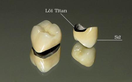 Làm Cầu Răng Sứ Có Gây Hôi Miệng Không? – Nha Khoa Quốc Tế Á Châu - ảnh 6