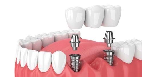 Bị Mất Răng Nên Làm Cầu Răng Sứ Hay Cấy Ghép Implant - ảnh 4