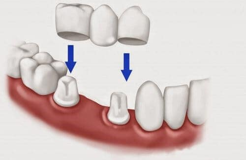 Top 3 Cách Trồng Răng Giả Tốt Nhất Hiện Nay – Nha Khoa Quốc Tế Á Châu - ảnh 5