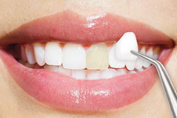 Phương Pháp Chữa Răng Cửa To Và Hô Nhanh Nhất – Nha Khoa Quốc Tế Á Châu - ảnh 5