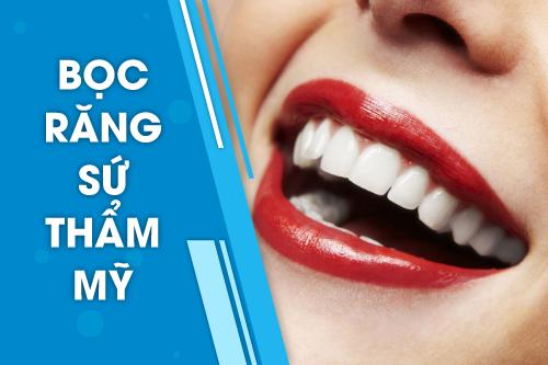 Răng Sứ Bị Vỡ Có Được Bảo Hành Không? – Nha Khoa Quốc Tế Á Châu - ảnh 5