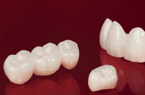 Răng Toàn Sứ Giá Bao Nhiêu? Răng Toàn Sứ Có Tốt Không? Các Loại Răng Toàn Sứ Phổ Biến - ảnh 4