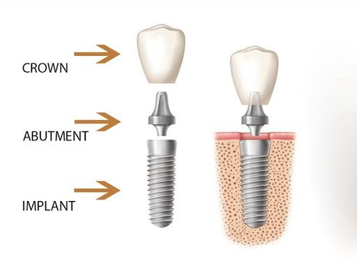 Trồng Răng Giả Implant Loại Nào Tốt Nhất Hiện Nay? Nha Khoa Quốc Tế Á Châu - ảnh 3