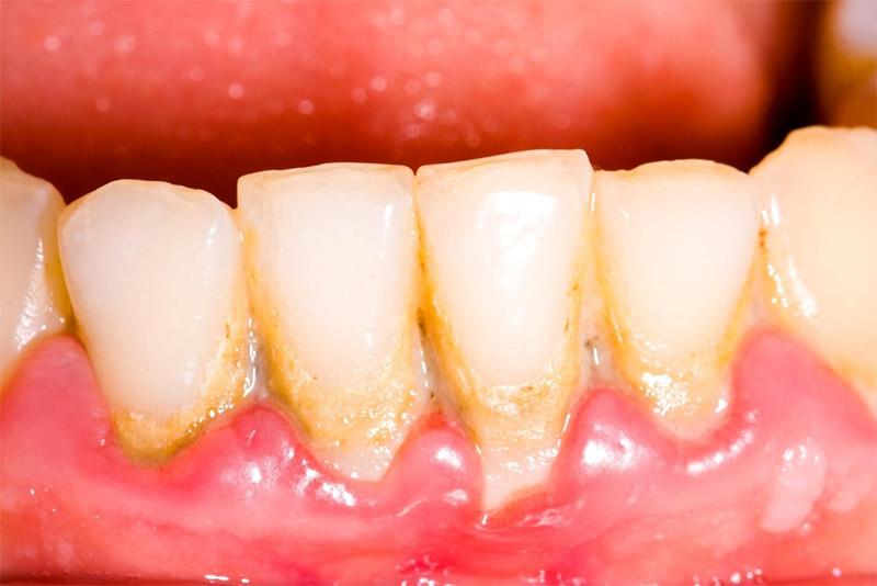 Làm Cầu Răng Sứ Có Gây Hôi Miệng Không? – Nha Khoa Quốc Tế Á Châu - ảnh 8
