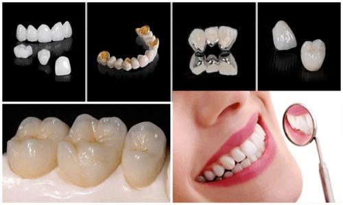 Bọc Răng Sứ Có Được Vĩnh Viễn Không? Nha Khoa Quốc Tế Á Châu - ảnh 5