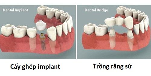 Bị Mất Răng Nên Làm Cầu Răng Sứ Hay Cấy Ghép Implant - ảnh 5