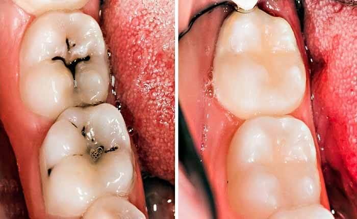 Răng Sâu Có Nên Bọc Răng Sứ? – Nha Khoa Quốc Tế Á Châu - ảnh 6