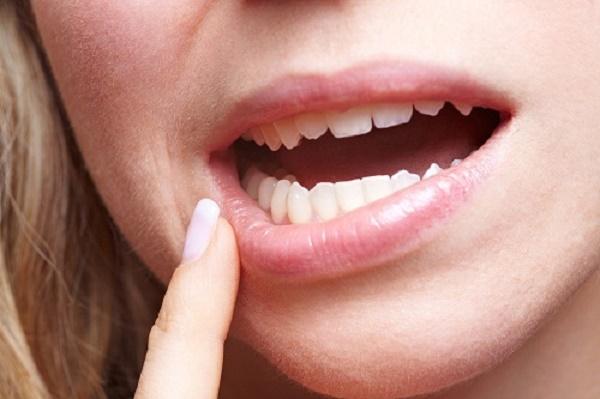 Răng Bị Lung Lay Có Bọc Sứ Được Không? – Nha Khoa Quốc Tế Á Châu - ảnh 6