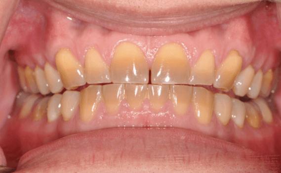 Răng Bị Ố Vàng Có Nên Bọc Răng Sứ? – Nha Khoa Quốc Tế Á Châu - ảnh 6