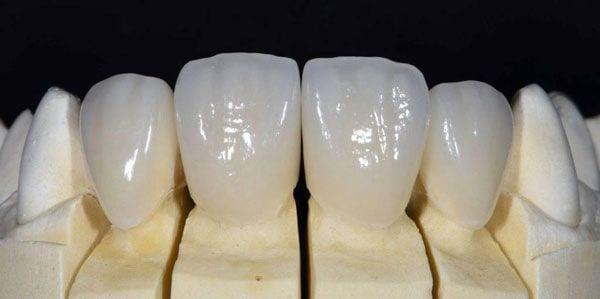 Răng Toàn Sứ Giá Bao Nhiêu? Răng Toàn Sứ Có Tốt Không? Các Loại Răng Toàn Sứ Phổ Biến - ảnh 6