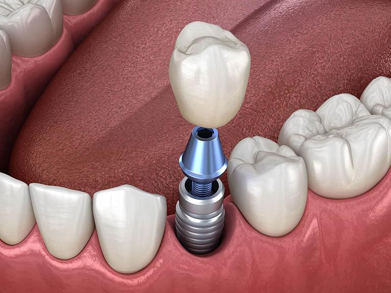 Quy Trình Cấy Ghép Implant Như Thế Nào? Nha Khoa Quốc Tế Á Châu - ảnh 6