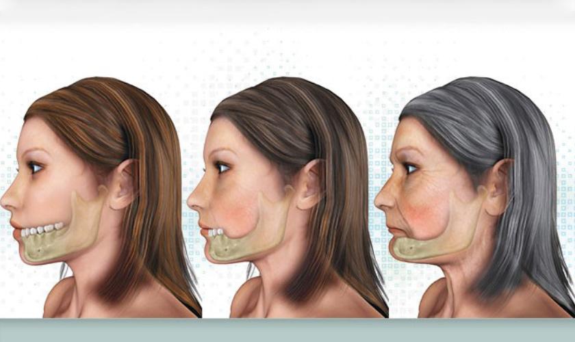 Bị Mất Răng Nên Làm Cầu Răng Sứ Hay Cấy Ghép Implant - ảnh 6
