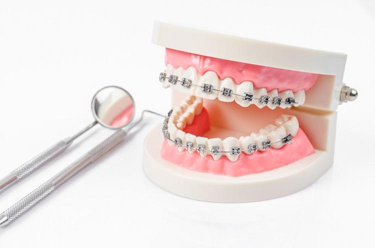 Cảm Giác Trong Quá Trình Niềng Răng Như Thế Nào? – Nha Khoa Quốc Tế Á Châu - ảnh 5