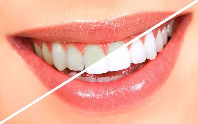 Răng Bị Ố Vàng Có Nên Bọc Răng Sứ? – Nha Khoa Quốc Tế Á Châu - ảnh 7