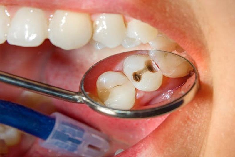 Răng Sâu Có Nên Bọc Răng Sứ? – Nha Khoa Quốc Tế Á Châu - ảnh 7