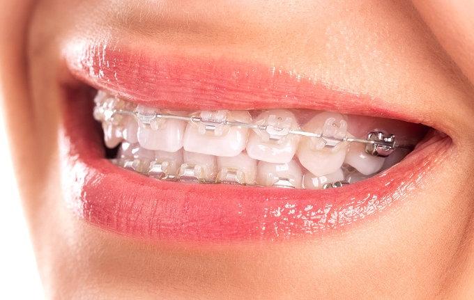 Cảm Giác Trong Quá Trình Niềng Răng Như Thế Nào? – Nha Khoa Quốc Tế Á Châu - ảnh 8