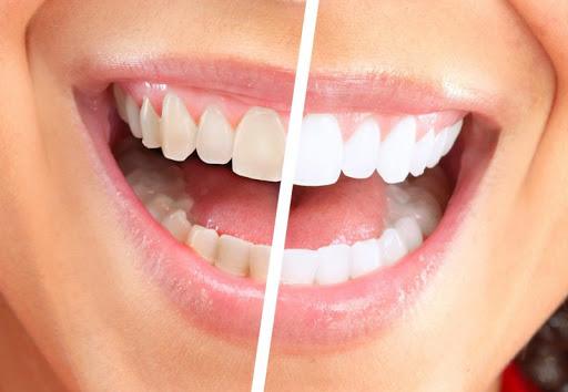 Răng Bị Ố Vàng Có Nên Bọc Răng Sứ? – Nha Khoa Quốc Tế Á Châu - ảnh 8
