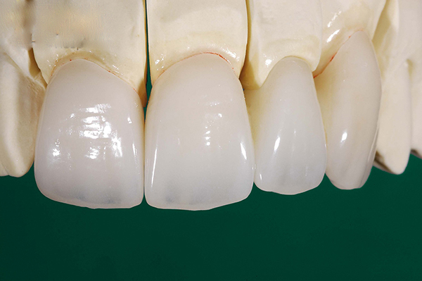 Răng Toàn Sứ Giá Bao Nhiêu? Răng Toàn Sứ Có Tốt Không? Các Loại Răng Toàn Sứ Phổ Biến - ảnh 7