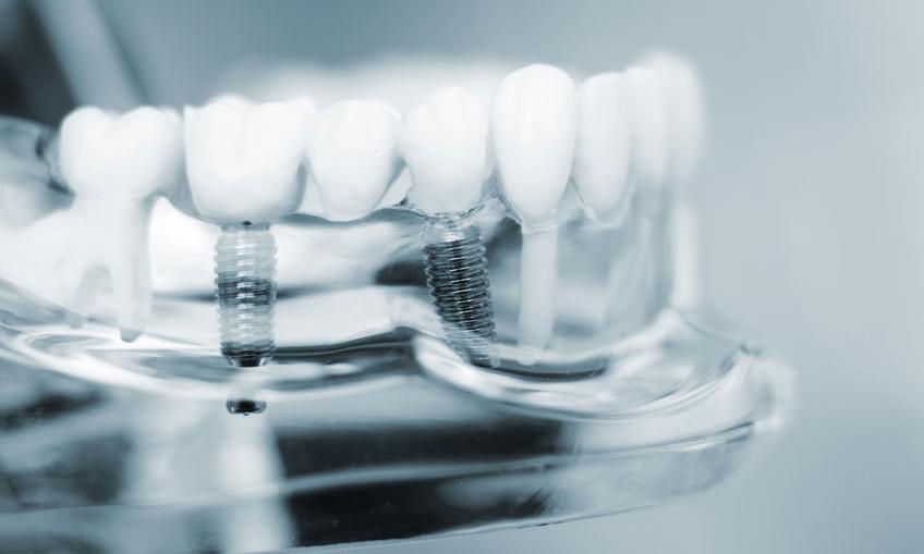 Trồng Răng Giả Implant Loại Nào Tốt Nhất Hiện Nay? Nha Khoa Quốc Tế Á Châu - ảnh 6