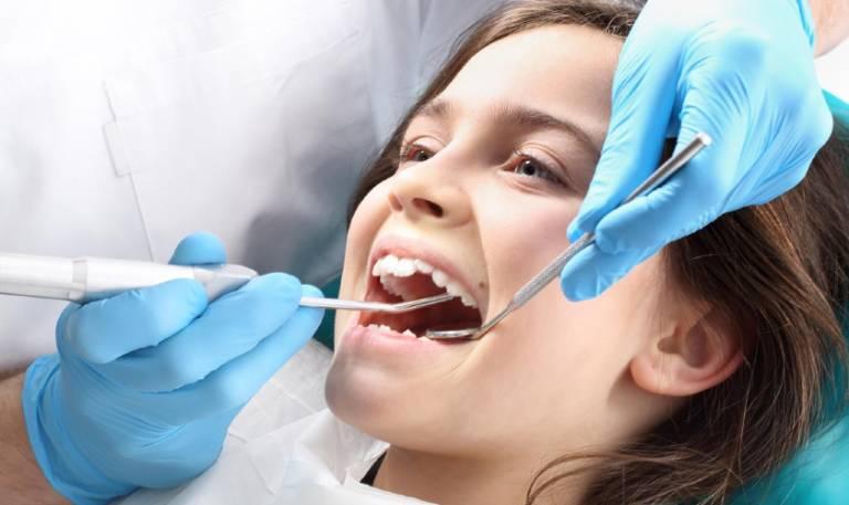 Răng Sâu Có Nên Bọc Răng Sứ? – Nha Khoa Quốc Tế Á Châu - ảnh 9