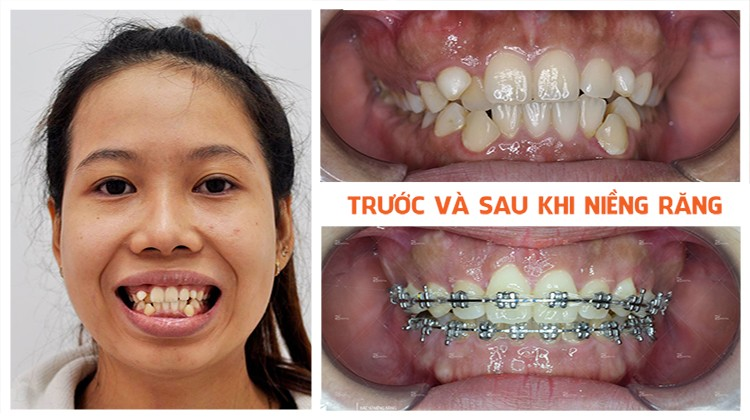 Cảm Giác Trong Quá Trình Niềng Răng Như Thế Nào? – Nha Khoa Quốc Tế Á Châu - ảnh 9