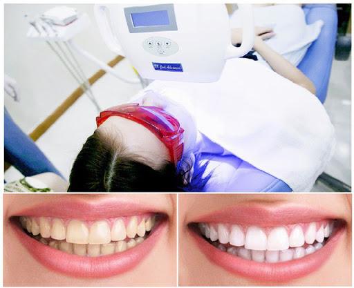 Răng Bị Ố Vàng Có Nên Bọc Răng Sứ? – Nha Khoa Quốc Tế Á Châu - ảnh 9