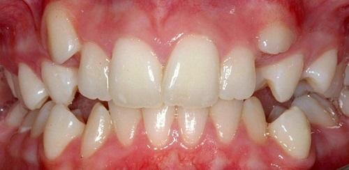 Răng Mọc Chồi Là Gì? Những Cách Khắc Phục Hiệu Quả Nhất - ảnh 1
