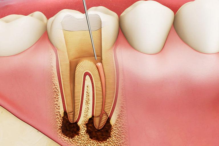 Lấy Tủy Răng Không Sạch Có Nguy Hiểm Không? – Nha Khoa Quốc Tế Á Châu - ảnh 1