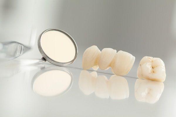 Bọc Răng Sứ Có Tồn Tại Mãi Không? – Nha Khoa Quốc Tế Á Châu - ảnh 1