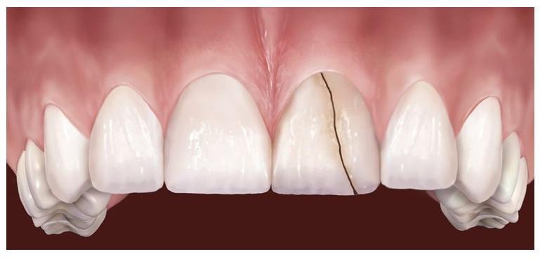 Bọc Răng Sứ Có Tồn Tại Mãi Không? – Nha Khoa Quốc Tế Á Châu - ảnh 10