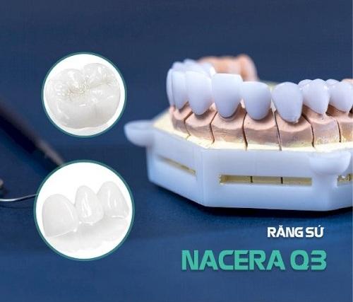 Răng Thừa Mọc Giữa 2 Răng Cửa Phải Làm Sao? – Nha Khoa Quốc Tế Á Châu - ảnh 8