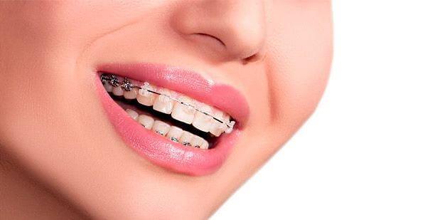 Răng Mọc Chồi Là Gì? Những Cách Khắc Phục Hiệu Quả Nhất - ảnh 7