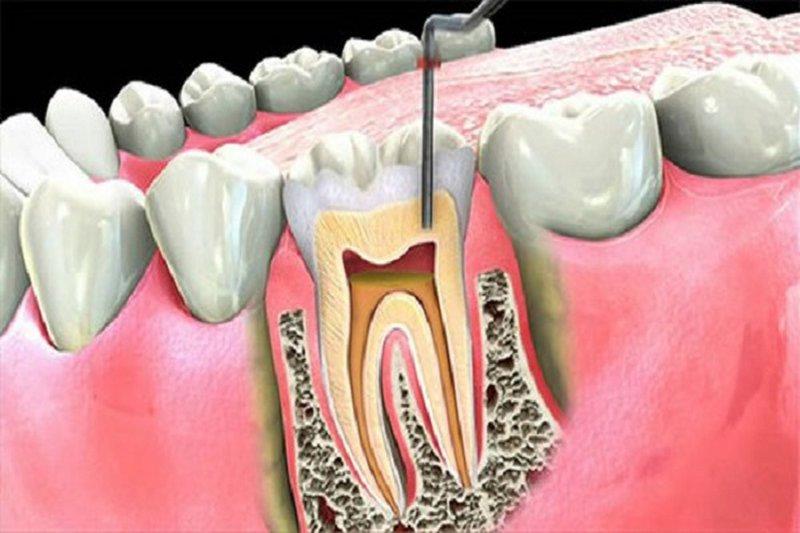 Lấy Tủy Răng Không Sạch Có Nguy Hiểm Không? – Nha Khoa Quốc Tế Á Châu - ảnh 2