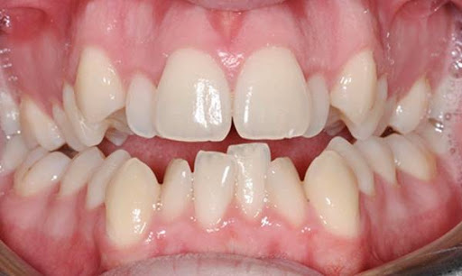 Răng Mọc Chồi Là Gì? Những Cách Khắc Phục Hiệu Quả Nhất - ảnh 2