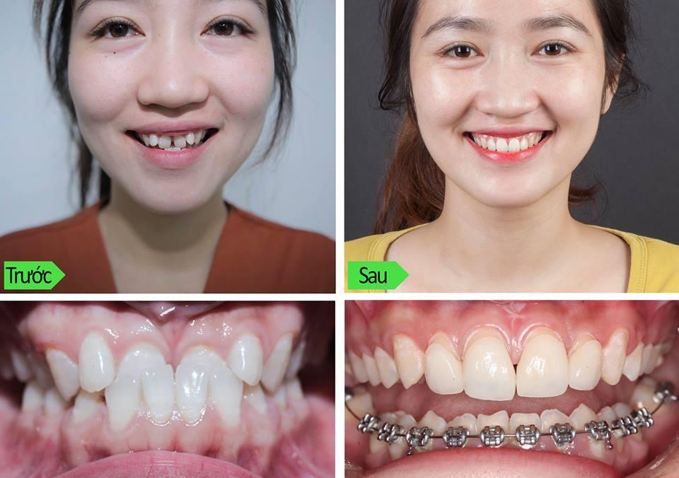 Nhổ Răng Bao Lâu Thì Gắn Niềng Răng? – Nha Khoa Quốc Tế Á Châu - ảnh 12