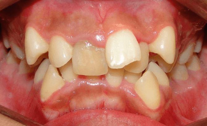 Răng Mọc Chồi Là Gì? Những Cách Khắc Phục Hiệu Quả Nhất - ảnh 3