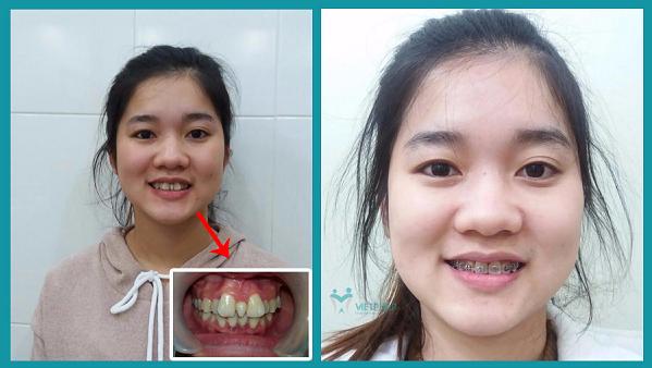 Nhổ Răng Bao Lâu Thì Gắn Niềng Răng? – Nha Khoa Quốc Tế Á Châu - ảnh 13