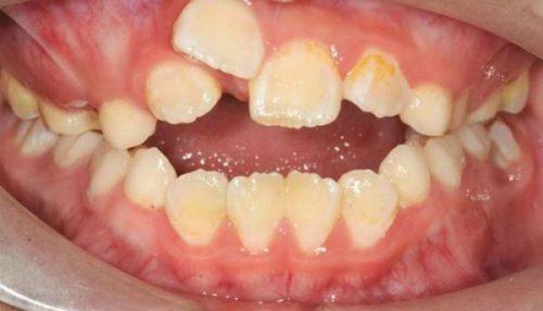 Răng Mọc Chồi Là Gì? Những Cách Khắc Phục Hiệu Quả Nhất - ảnh 4