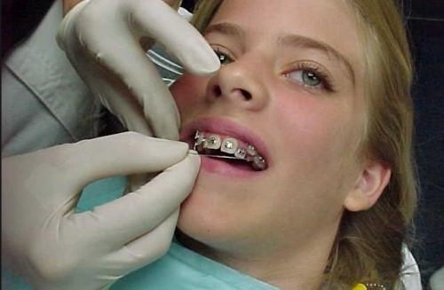 Mang Thai Có Niềng Răng Được Không? – Nha Khoa Quốc Tế Á Châu - ảnh 5