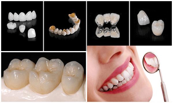 Bọc Răng Sứ Có Tồn Tại Mãi Không? – Nha Khoa Quốc Tế Á Châu - ảnh 6