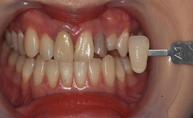 Bọc Răng Sứ Có Tồn Tại Mãi Không? – Nha Khoa Quốc Tế Á Châu - ảnh 7