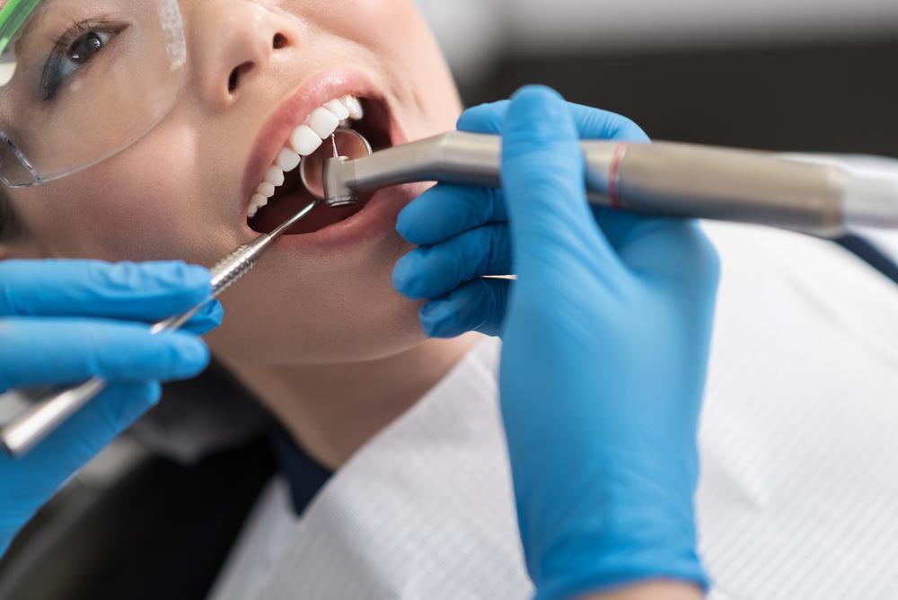 Lấy Tủy Răng Không Sạch Có Nguy Hiểm Không? – Nha Khoa Quốc Tế Á Châu - ảnh 7