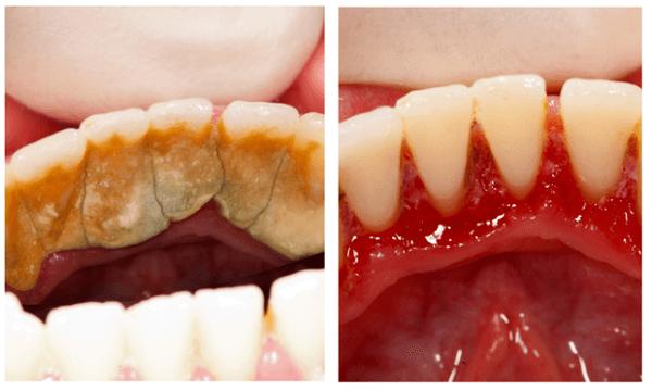 Lấy Cao Răng Có Hết Hôi Miệng Không? – Nha Khoa Quốc Tế Á Châu - ảnh 1