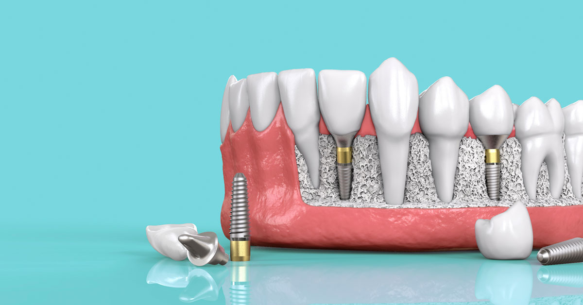 Kinh Nghiệm Trồng Răng Implant Cho Người Muốn Thực Hiện - ảnh 1