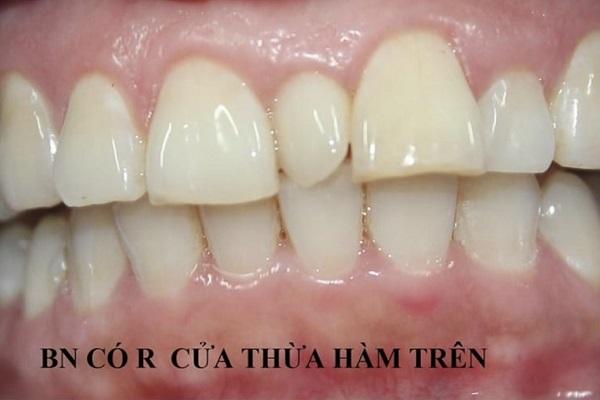 Răng Thừa Mọc Giữa 2 Răng Cửa Phải Làm Sao? – Nha Khoa Quốc Tế Á Châu - ảnh 1