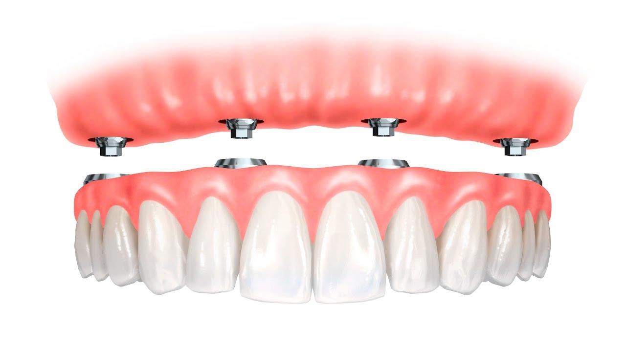 Trồng Răng Toàn Hàm Với Kỹ Thuật Implant All On 4 Và All On 6 - ảnh 1